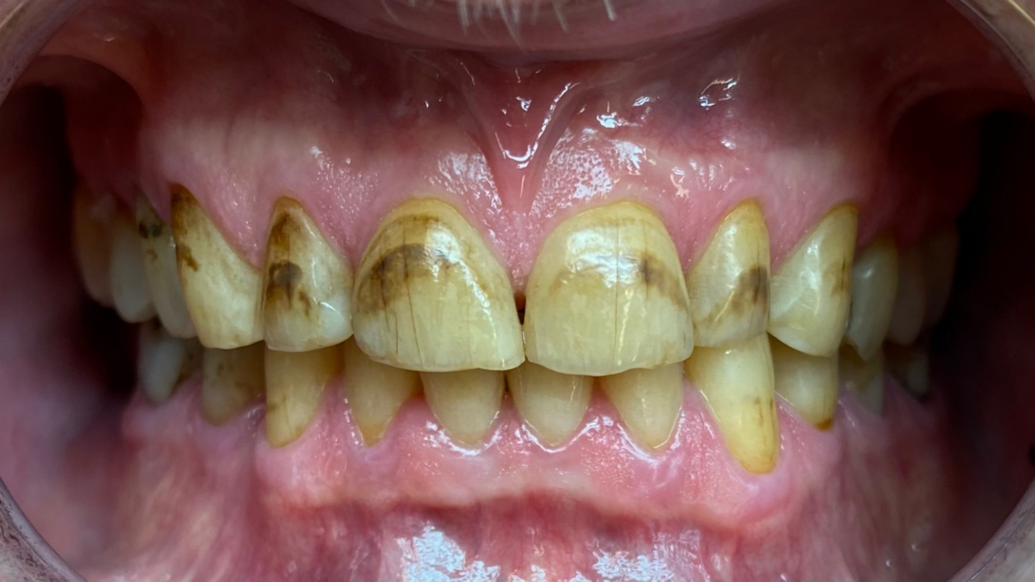 hammaseroosio