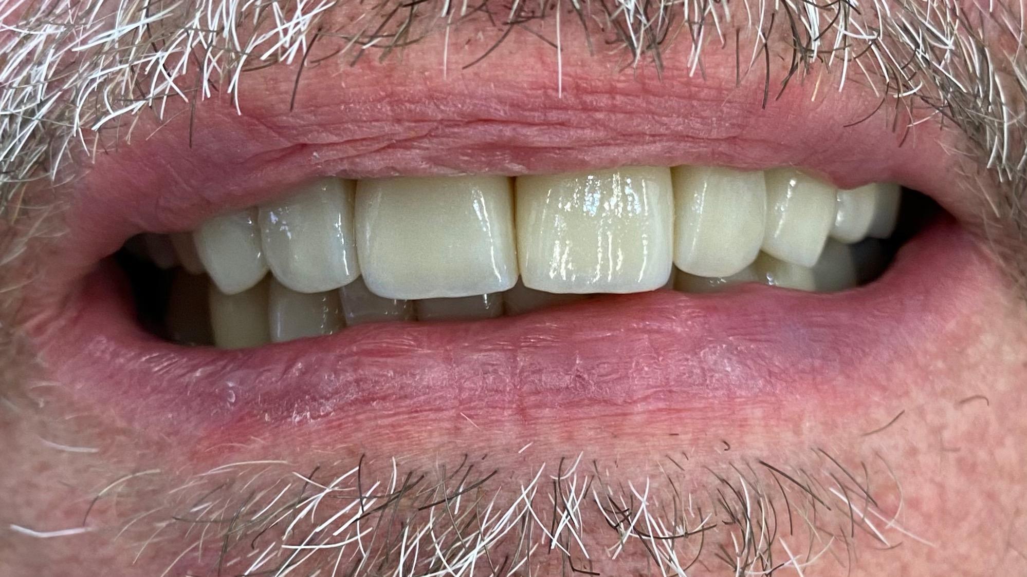 esteettinen-hammashoito