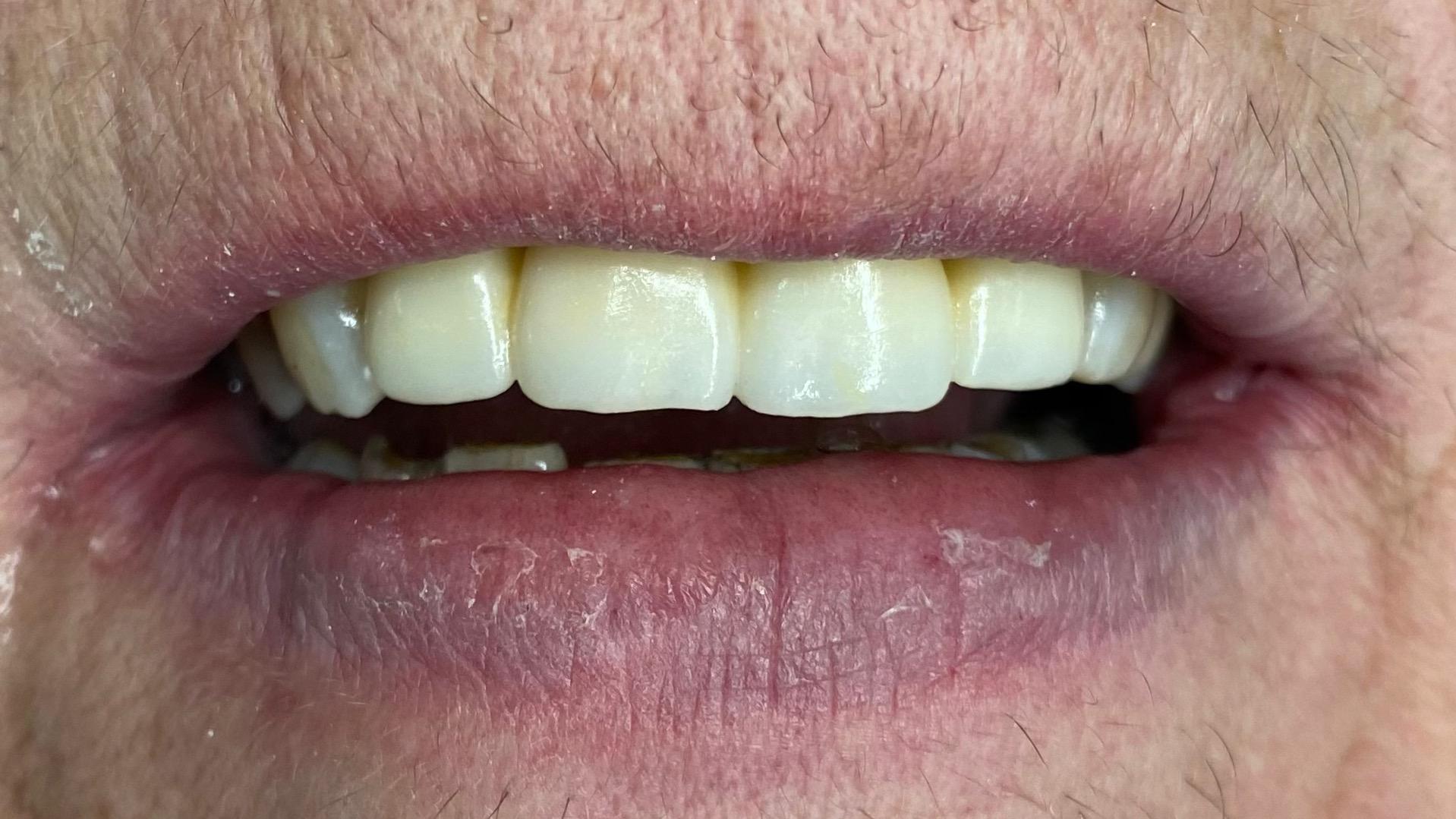 hammassilta