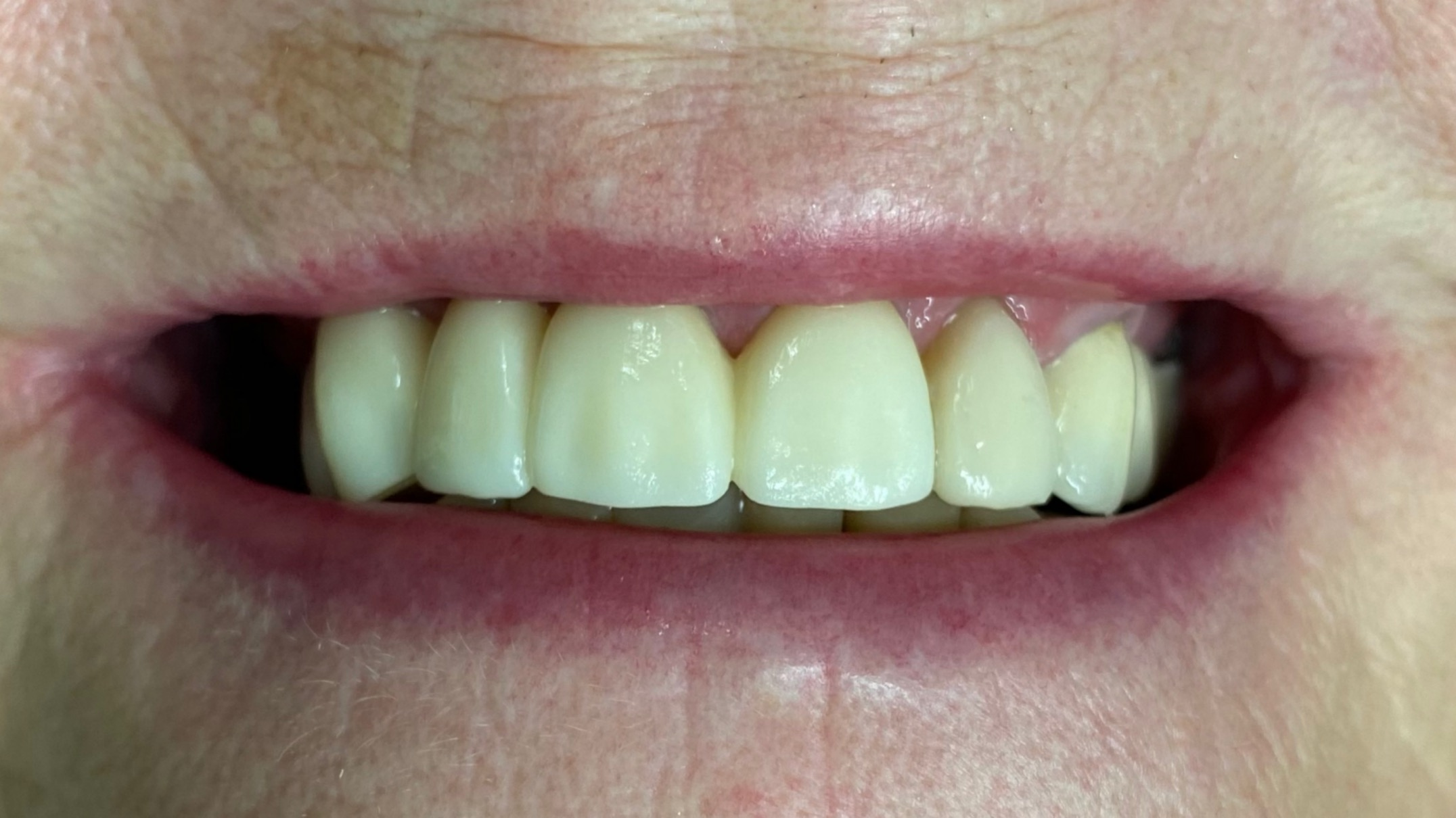 hammassilta-hymy
