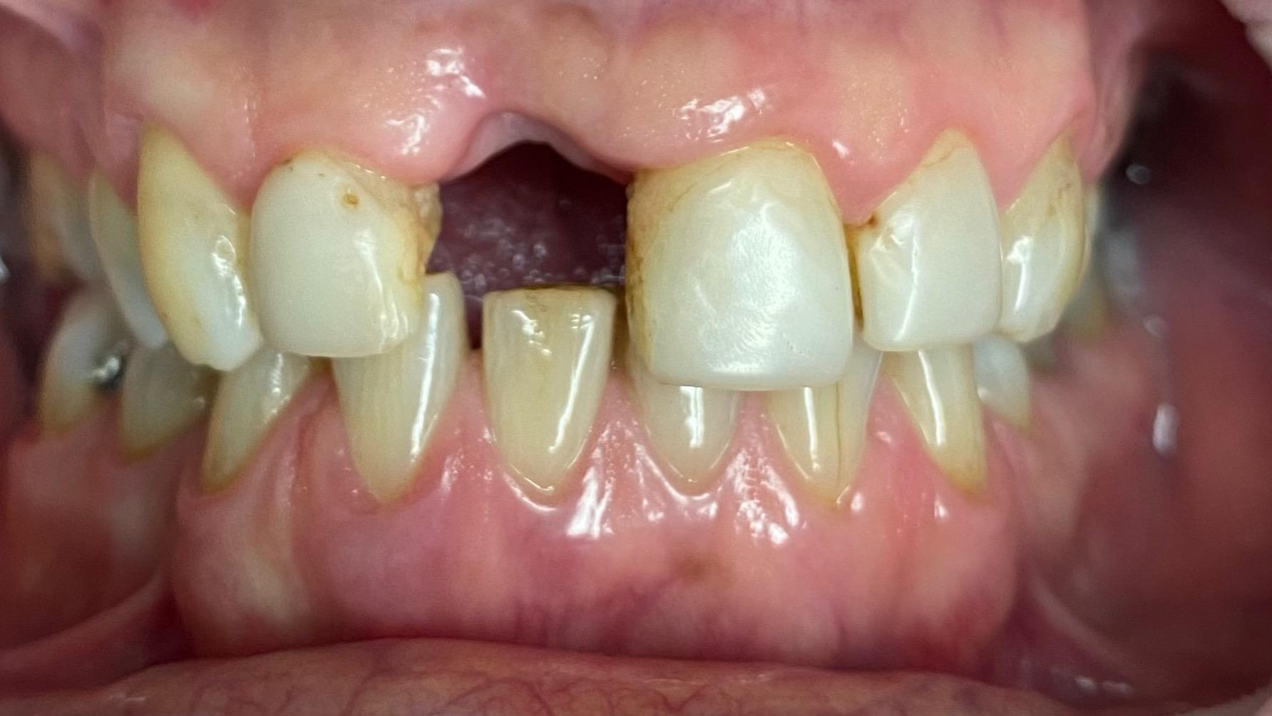 puuttuva-hammas